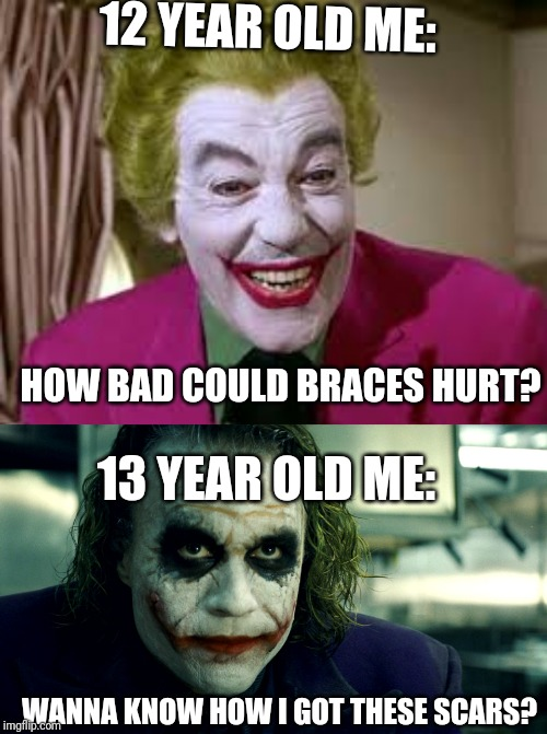 12 YEAR OLD ME: HOW BAD COULD BRACES HURT? 13 YEAR OLD ME: WANNA KNOW HOW I GOT THESE SCARS? | image tagged in wanna know how i got these scars,memes,funny,joker,braces | made w/ Imgflip meme maker