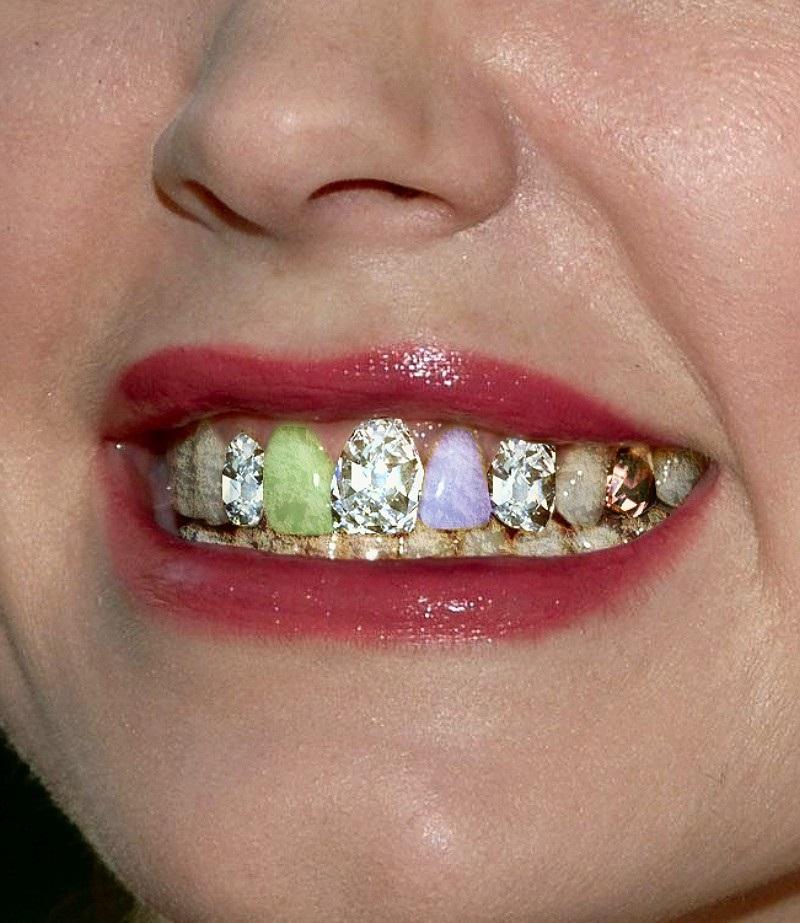 ближние стразы на зубах фото надо нарисовать кактусы