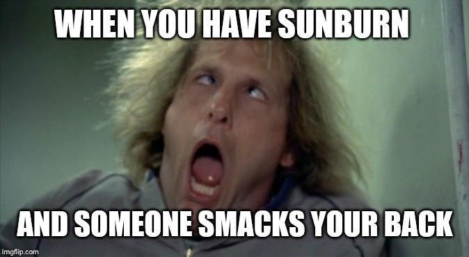Scary Harry | WHEN YOU HAVE SUNBURN AND SOMEONE SMACKS YOUR BACK | image tagged in memes,scary harry | made w/ Imgflip meme maker
