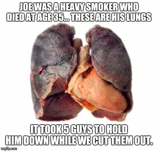 Don't cross the anti-smoking lobbyists... | JOE WAS A HEAVY SMOKER WHO DIED AT AGE 35... THESE ARE HIS LUNGS IT TOOK 5 GUYS TO HOLD HIM DOWN WHILE WE CUT THEM OUT. | image tagged in smoker sick unhealthy lungs,smoking,healthcare | made w/ Imgflip meme maker