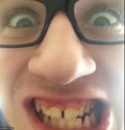 Braceless Andy | image tagged in braceless andy,creeper,creepy,creepy guy,creepy smile,smile | made w/ Imgflip meme maker