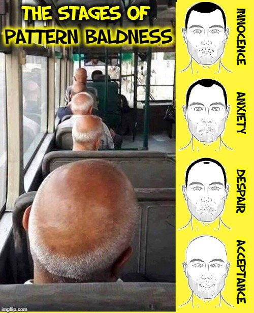 I'm Not Bald, but Suffer from Enlarged Forehead Syndrome | THE STAGES OF INNOCENCE      ANXIETY        DESPAIR      ACCEPTANCE PATTERN BALDNESS | image tagged in vince vance,bald,baldness,hair,enlarged forehead,pattern baldness | made w/ Imgflip meme maker