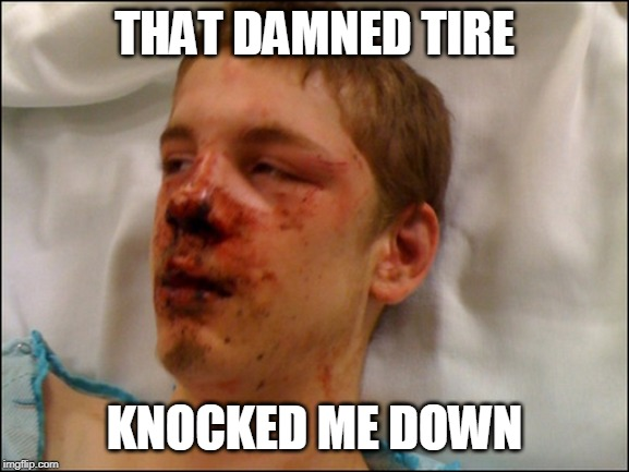 beat up guy | THAT DAMNED TIRE KNOCKED ME DOWN | image tagged in beat up guy | made w/ Imgflip meme maker