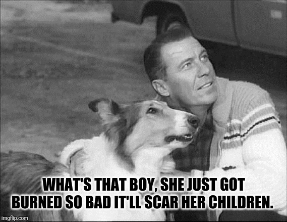What's that Lassie? | WHAT'S THAT BOY, SHE JUST GOT BURNED SO BAD IT'LL SCAR HER CHILDREN. | image tagged in what's that lassie | made w/ Imgflip meme maker