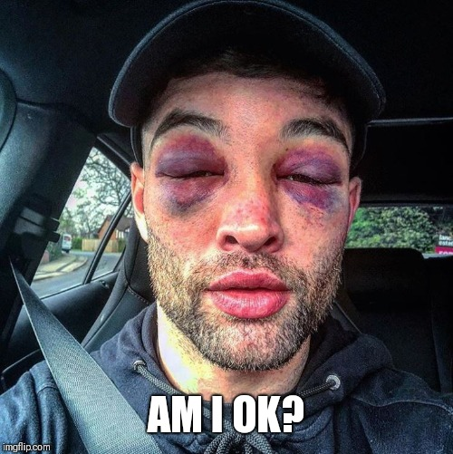 Double black eye | AM I OK? | image tagged in double black eye | made w/ Imgflip meme maker