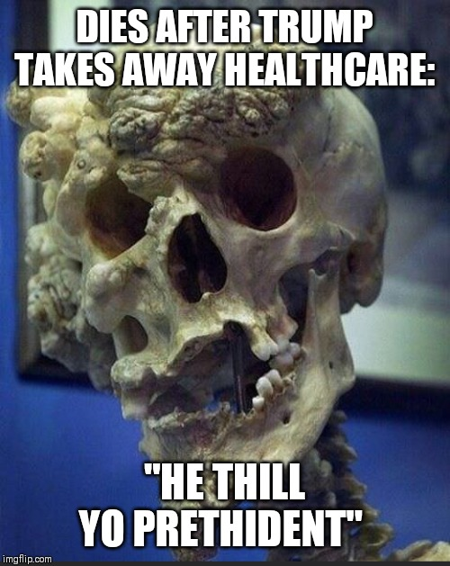 "Trump Dead |  DIES AFTER TRUMP TAKES AWAY HEALTHCARE:; ""HE THILL YO PRETHIDENT"" 