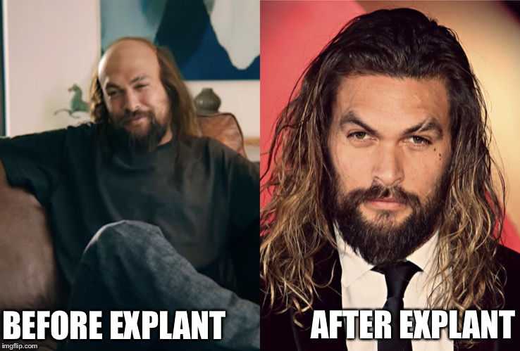 AFTER EXPLANT; BEFORE EXPLANT | image tagged in memes | made w/ Imgflip meme maker