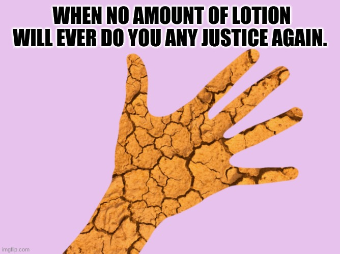 Dry & Cracked AF |  WHEN NO AMOUNT OF LOTION WILL EVER DO YOU ANY JUSTICE AGAIN. | image tagged in coronavirus,pandemic,hands,washing hands,dry,lotion | made w/ Imgflip meme maker
