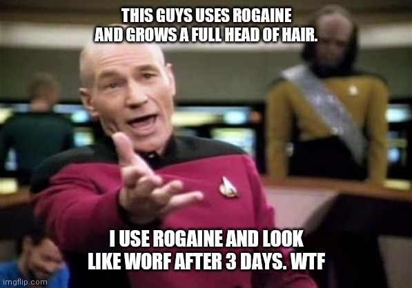 Picard Wtf | THIS GUYS USES ROGAINE AND GROWS A FULL HEAD OF HAIR. I USE ROGAINE AND LOOK LIKE WORF AFTER 3 DAYS. WTF | image tagged in memes,picard wtf | made w/ Imgflip meme maker
