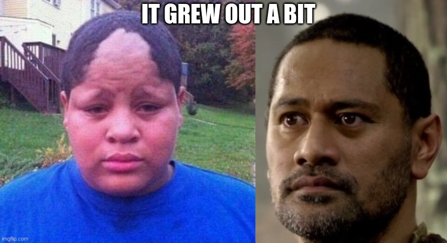 hairline |  IT GREW OUT A BIT | image tagged in bad hairline,hair,memes | made w/ Imgflip meme maker