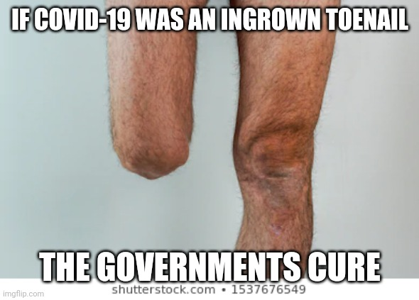 IF COVID-19 WAS AN INGROWN TOENAIL; THE GOVERNMENTS CURE | image tagged in covid-19,covid19,trump,cdc,hoax,economy | made w/ Imgflip meme maker