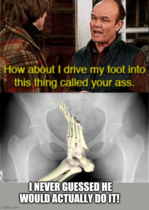 Red and his foot |  I NEVER GUESSED HE WOULD ACTUALLY DO IT! | image tagged in red foreman,foot,ass,xray,funny meme | made w/ Imgflip meme maker