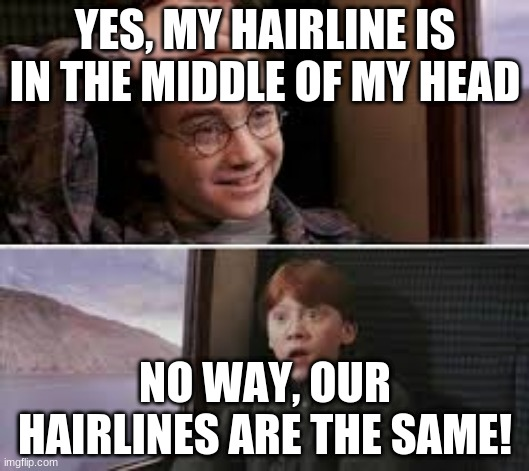 Similar hairlines |  YES, MY HAIRLINE IS IN THE MIDDLE OF MY HEAD; NO WAY, OUR HAIRLINES ARE THE SAME! | image tagged in harry potter,funny memes,hairline | made w/ Imgflip meme maker
