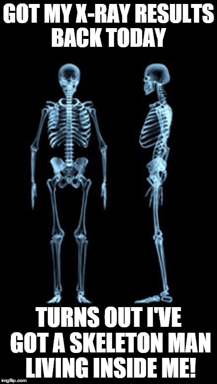 Funny Xray Meme : Image tagged in xray results imgflip