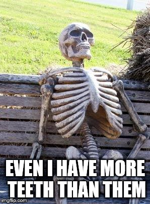 Waiting Skeleton Meme | EVEN I HAVE MORE TEETH THAN THEM | image tagged in memes,waiting skeleton | made w/ Imgflip meme maker