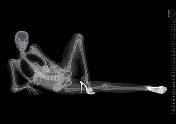 порно x ray фото